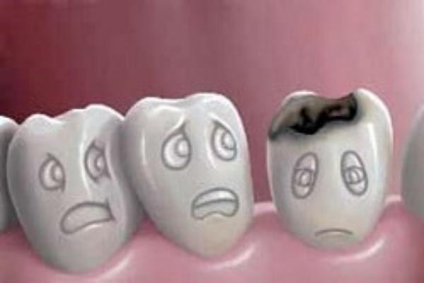 ۳خطر در کمین دندان های کودکان