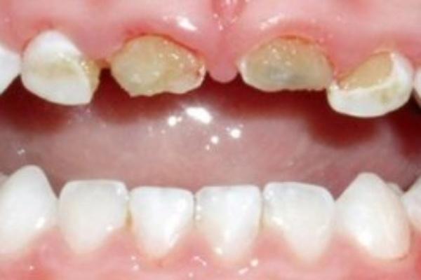 دندانپزشک اطفال: دلیل پوسیدگی دندانهای شیری