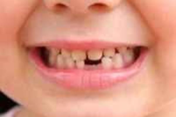 چرا اولین دندان بزرگ دائمی اهمیت دارد؟