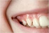 آشکار ساختن دندان برای اهداف ارتودنسی