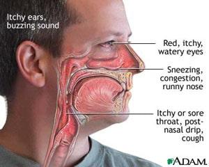 آلرژی های بینی