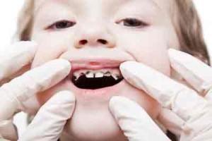 قطره آهن موجب سیاهی دندان کودکان نمیشود