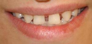 فاصله بین دندان های کودکان از دید دندانپزشک اطفال
