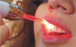 ترمیم دندان ها با لیزر