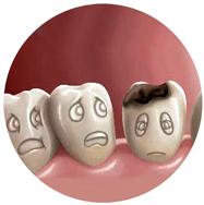 ارزیابی خطر پوسیدگی دندان