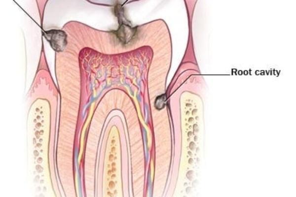 ریسک پوسیدگی در افراد از نظر دندانپزشک