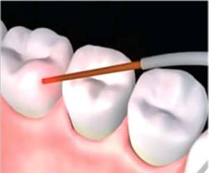 دندانپزشک ترمیمی با لیزر,دندانپزشک,دندانپزشکی بدون درد
