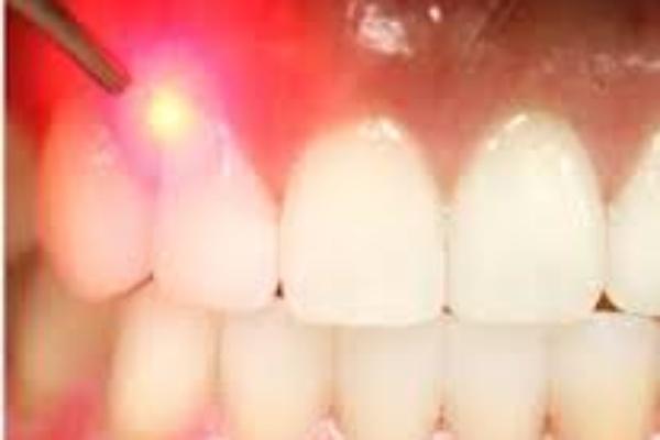 دندانپزشک ترمیمی با لیزر