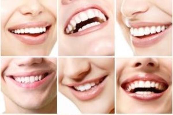 سفید کردن دندان های تغییر رنگ یافته