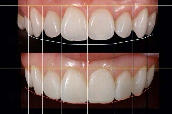 تشخیص ضایعات پالپ در دندان های شیری و دائمی تا بالغ