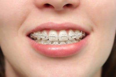 کاربردهای لیزر در کمک به دندانپزشک ترمیمی با لیزر