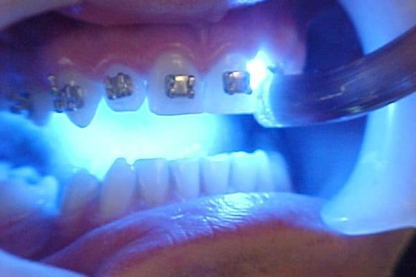 دندانپزشک ترمیمی با لیزر و نظر او درباره کنترل خونریزی ها