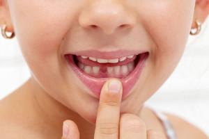 حفظ دندان های شیری از نظر دندانپزشک ترمیمی با لیزر