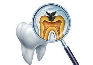 دیدگاه دندانپزشک اطفال درباره پوسیدگی دندان در کشورهای دیگر