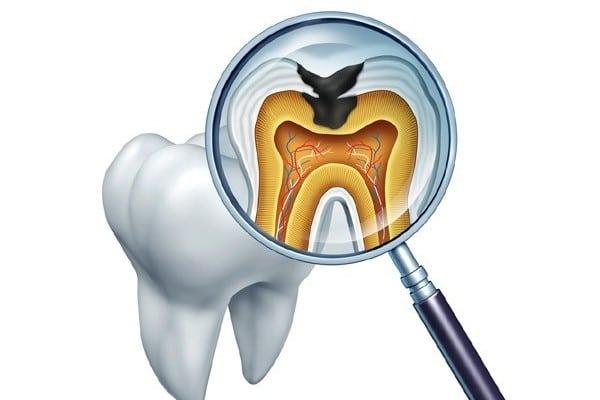 پوسیدگی دندان در کشورهای دیگر