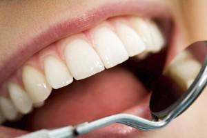 آسیب های دندانی طبق نظر دندانپزشک ترمیمی با لیزر