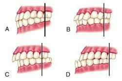 معاینه اکلوژن دندان توسط دندانپزشک ترمیمی با لیزر چیست