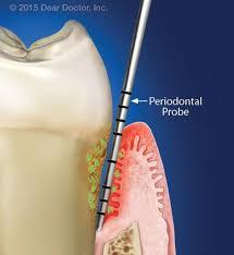 معاینه بافت های پریودنتال؛ در دندانپزشکی بدون دردمعاینه بافت های پریودنتال؛ در دندانپزشکی بدون درد