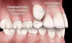 نهفتگی دندان؛ اختلال رویش دندان از نظر دندانپزشک ترمیمی با لیزر