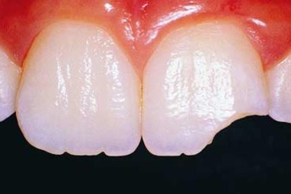 شکستگی تاج دندان