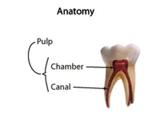 انسداد کانال پالپ با نظر دندانپزشک ترمیمی با لیزر