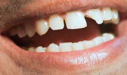 شکستگی تاج ـ ریشه دندان