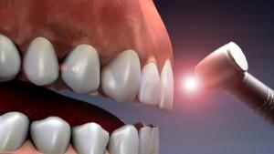 فیبر نوری از نظر دندانپزشک در دندانپزشکی بدون درد