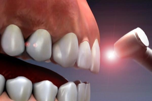 کاربردهای دیگر لیزر در دندانپزشکی اطفال