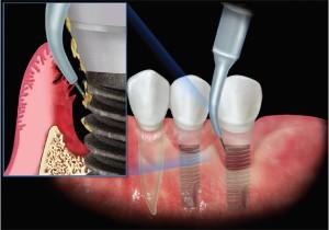 کاربرد لیزر در ایمپلنت توسط دندانپزشک اطفال