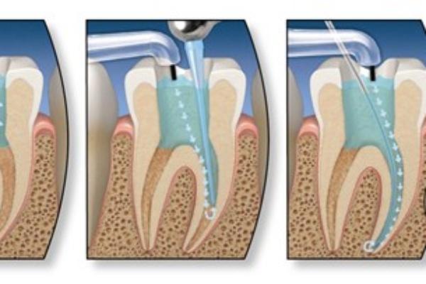 بی حسی موضعی در دندانپزشکی بدون درد