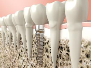 کاربرد لیزر در ایمپلنت توسط دندانپزشک