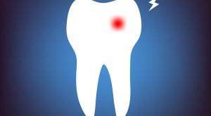 کنترل دردهای شدید با اپیوئیدها در دندانپزشکی بدون درد
