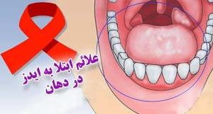 بهداشت دهانی و بیماری ایدز