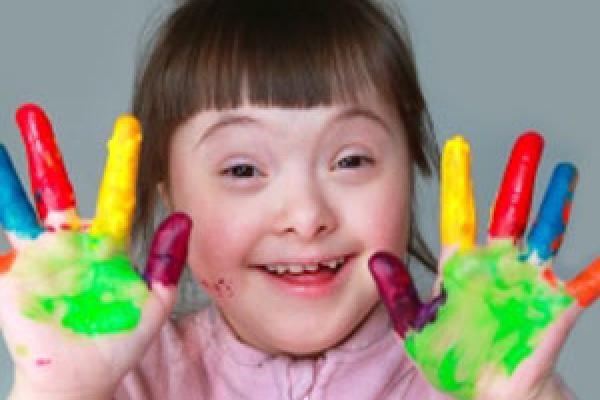 وضعیت دهانی کودکان سندرم داون