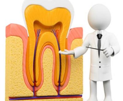 تکنیک های درمان ریشه دندان یا اندودنتیک
