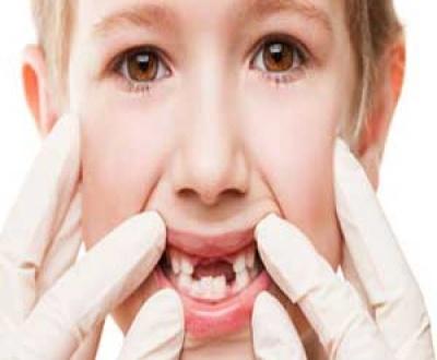 آسیب ها و شکستگی های دندان شیری کودکان