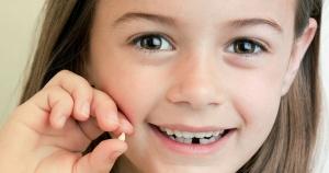 مکانیزم افتادن دندان های شیری