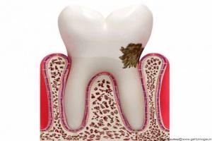 بیماری های شایع دهانی کودکان