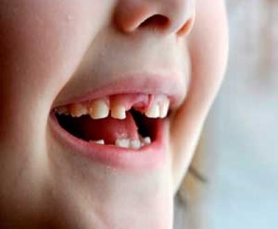مشکلات رایج دهانی کودکان