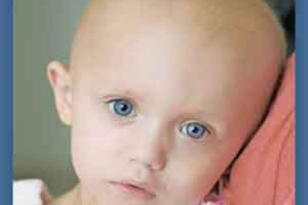 بهداشت دهانی کودکان سرطانی