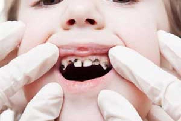 دندان های کراس بایت
