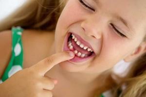 ناهنجاری دندان کودکان