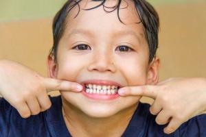 ناهنجاری دندان در اندازه