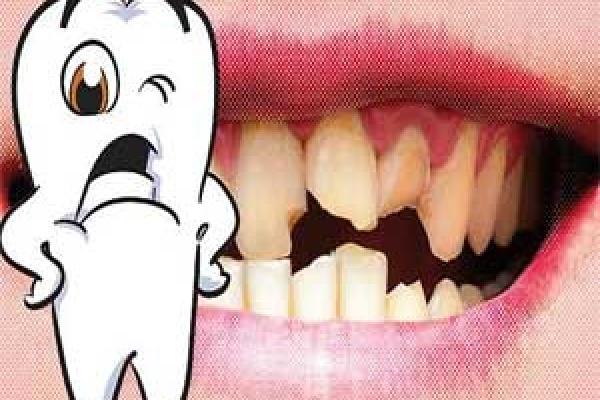 درمان کوفتگی یا آسیب دیدگی دندان ها