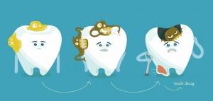 راه های جلوگیری از پوسیدگی دندان
