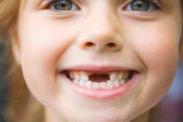 پوسیدگی زودرس دندان های شیری