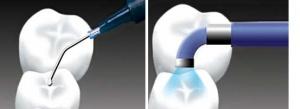 مراحل شیاربندی دندان