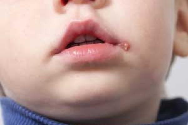 آفت های دهانی کودکان