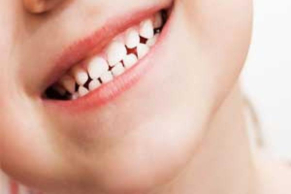 آسیب های دندانی کودکان