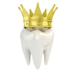 بریج دندان کودکان